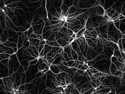 Mapa connexions elèctriques del cervell
